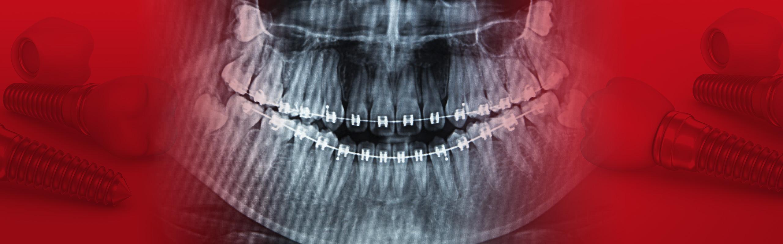 pantomografia1